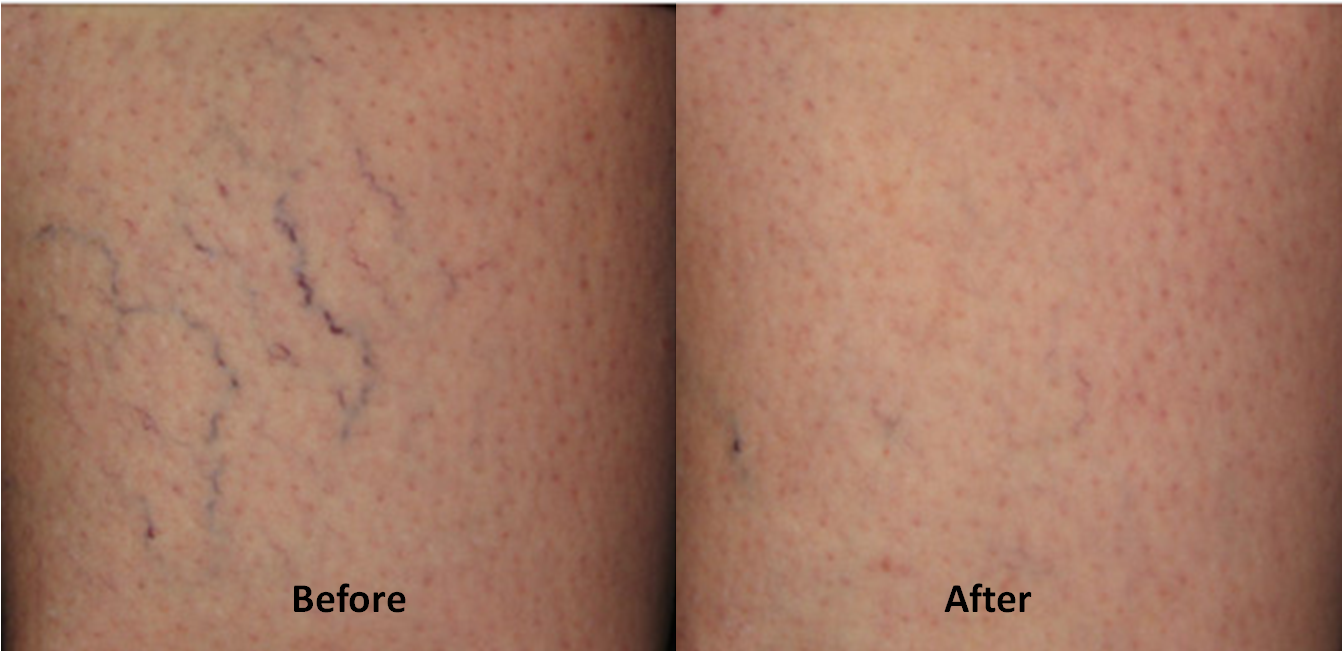 Varicose veins before and after treatment.